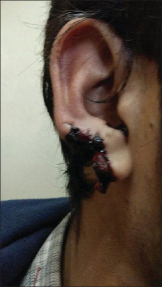 Figure 1: The ear was bitten by the assailant during interpersonal fight. Medical intervention (first aid and suturing) has destroyed any potential of forensic dental evidence