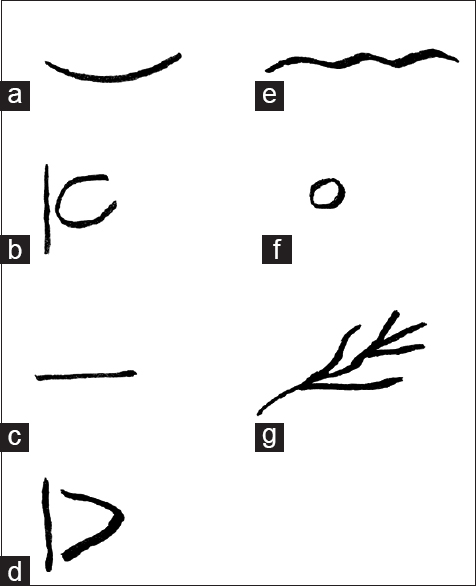 Figure 3: Class of rugae used for the study (a) curved (b) converging (c) straight (d) diverging (e) wavy (f) circular (g) furcated